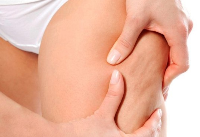 Cellulite : 3 Solutions Naturelles