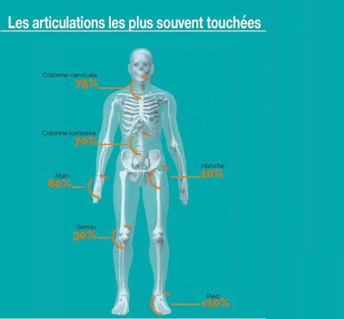 Comment Soulager L'arthrose